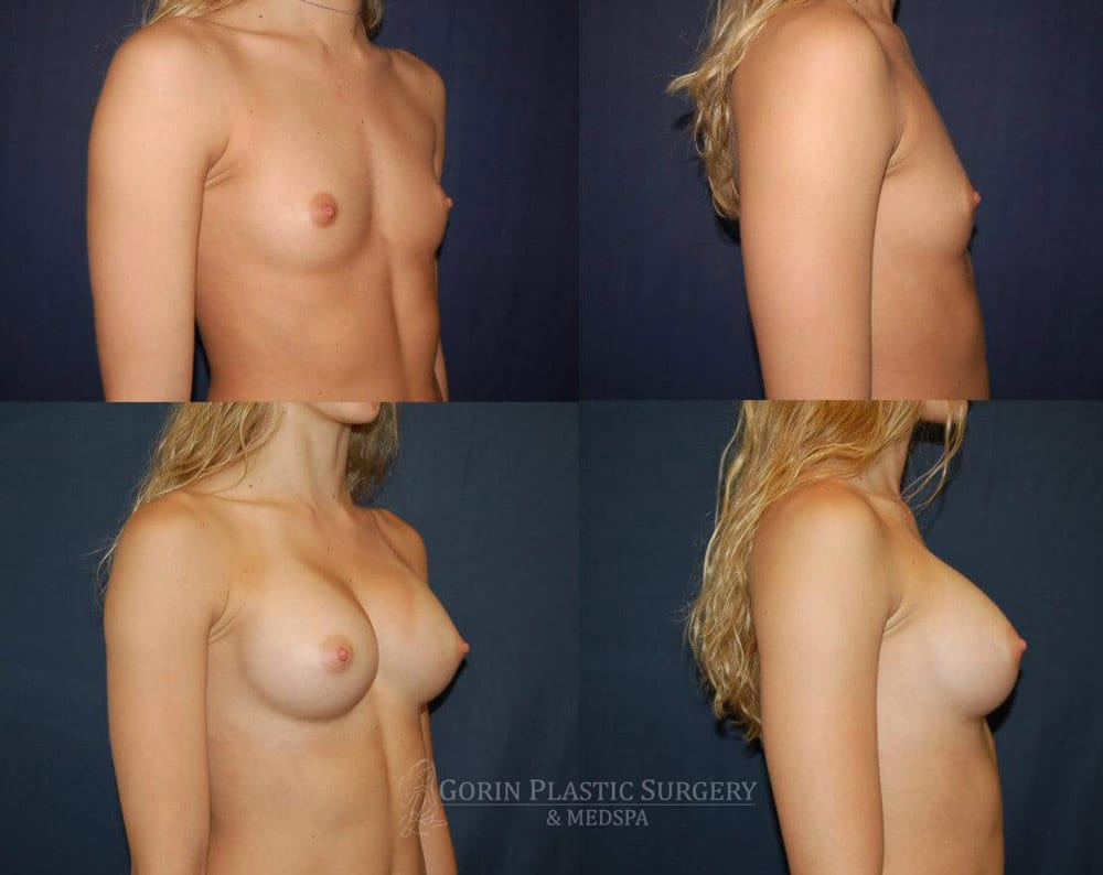 Breast augmentation before and after side view 72