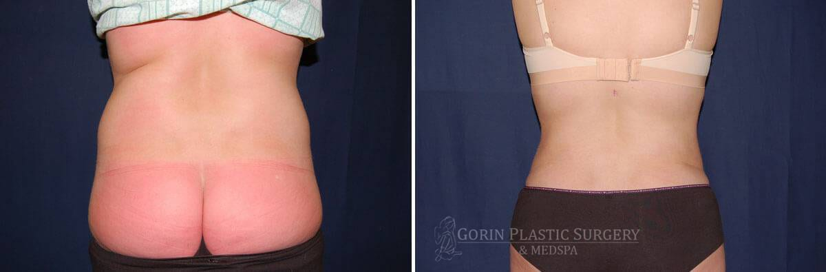 Liposuction before and after 6