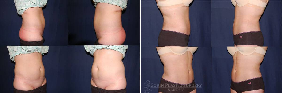 Liposuction before and after 5