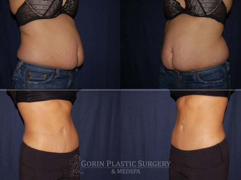 Tummy tuck before and after 81