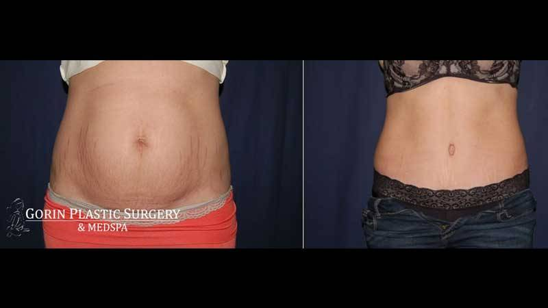 Tummy tuck before and after 52