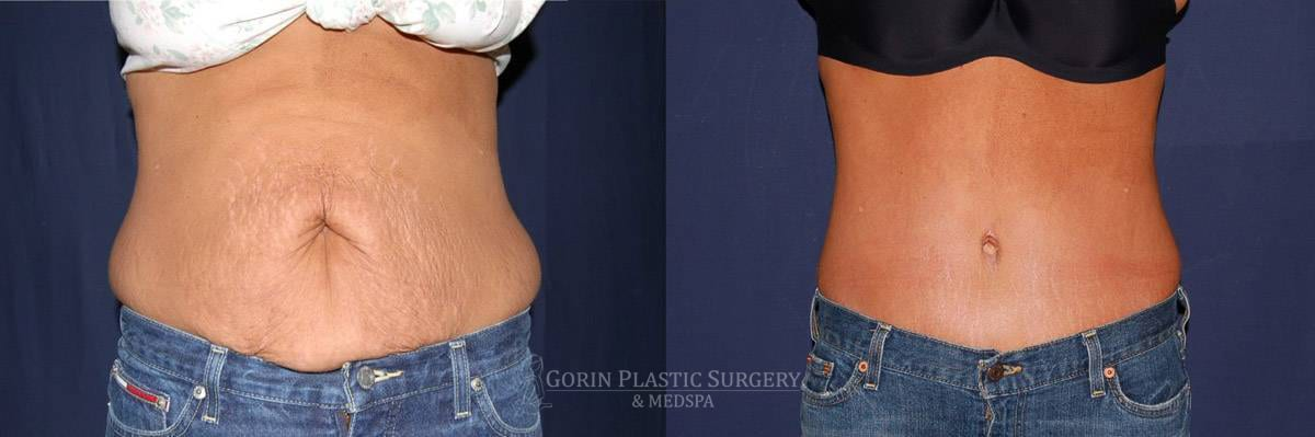 Tummy tuck before and after 41