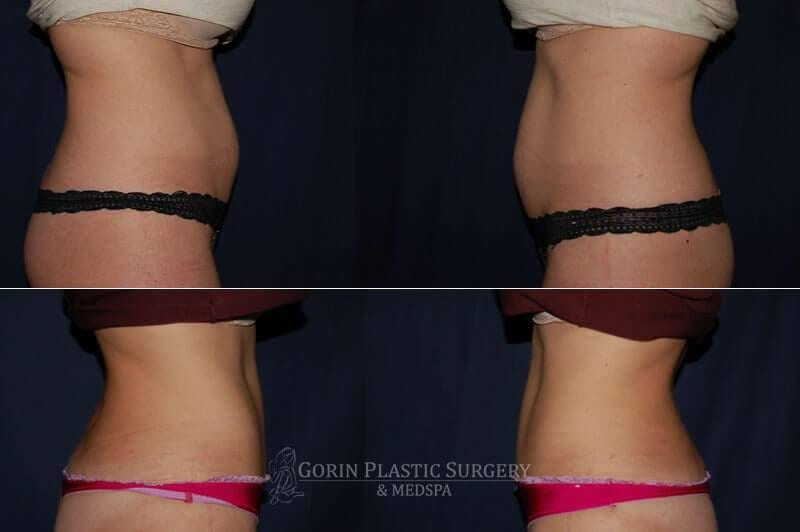 Tummy tuck before and after 35