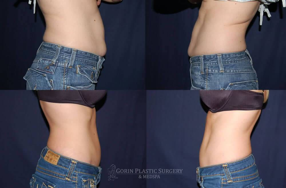 Tummy tuck before and after 25