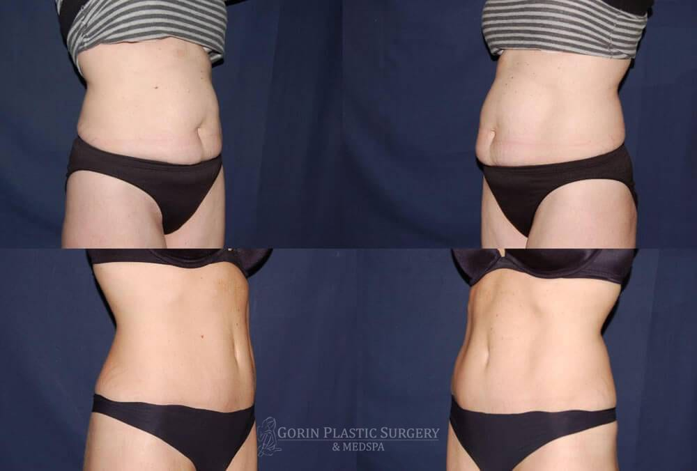 Tummy tuck before and after 22