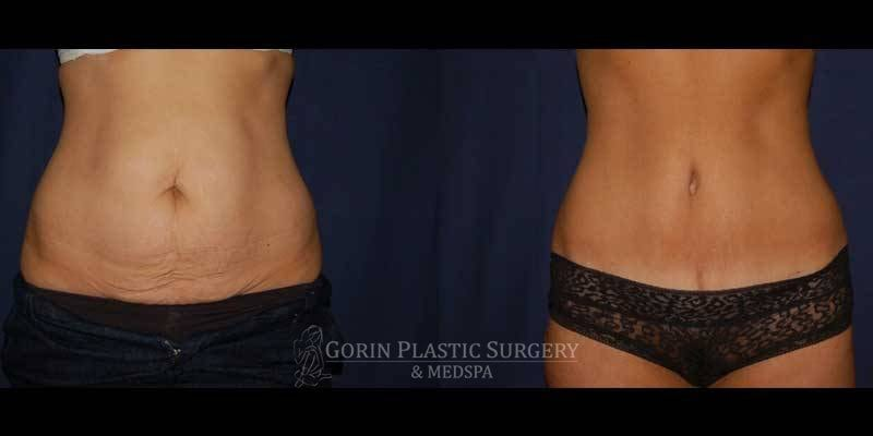 Tummy tuck before and after 21