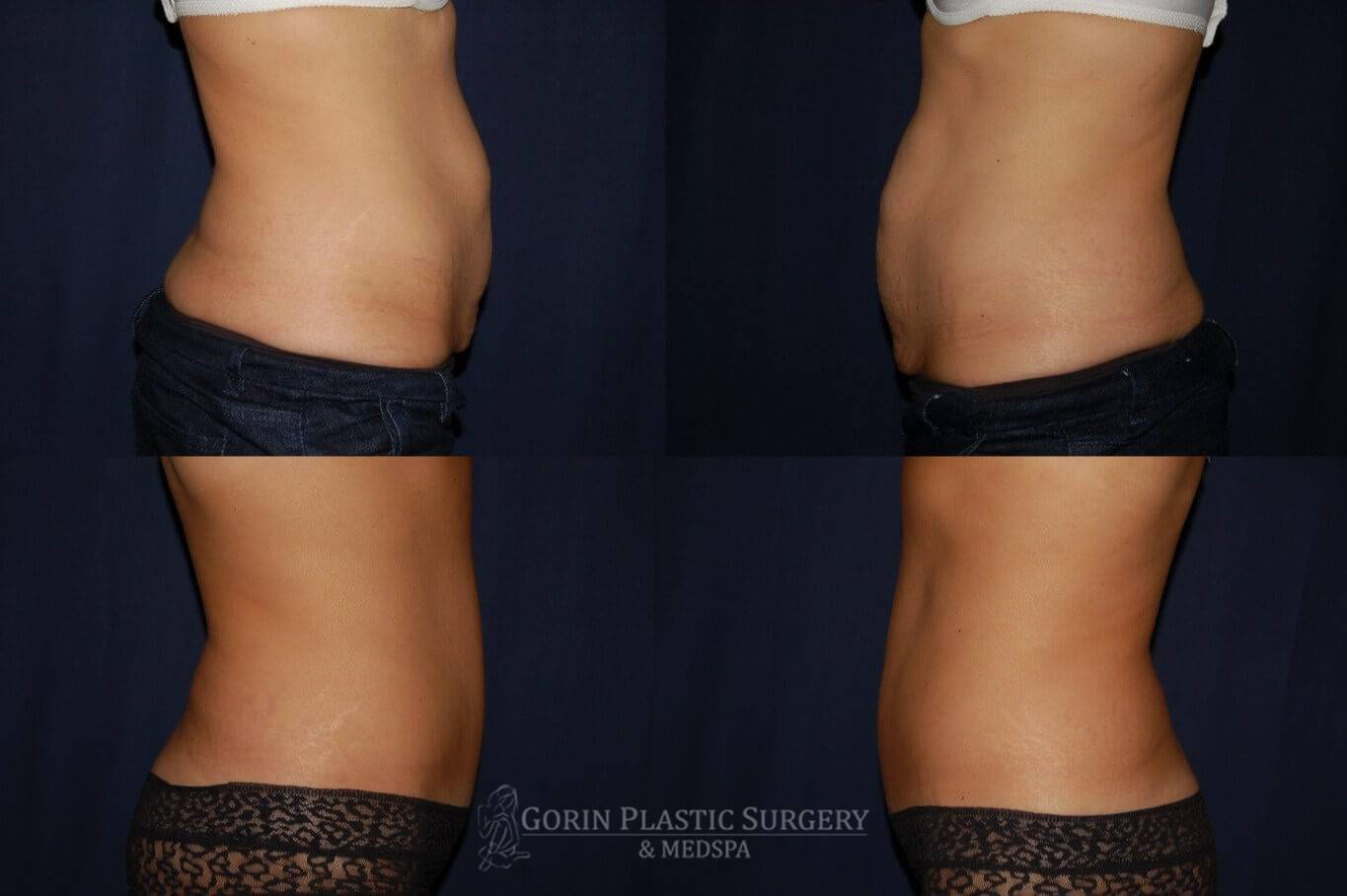 Tummy tuck before and after 20