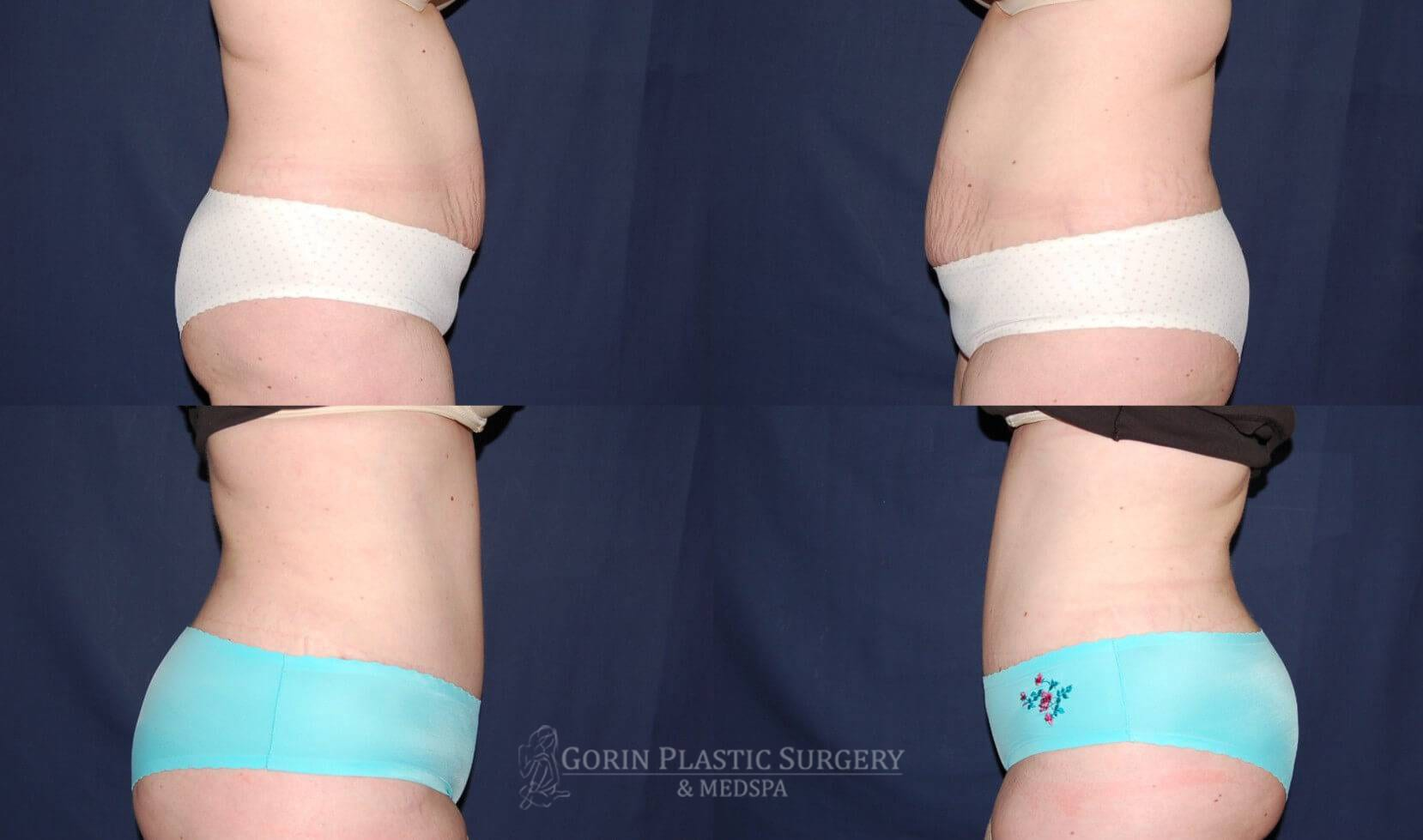 Tummy tuck before and after 13