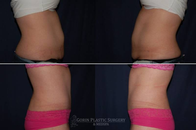 Tummy tuck before and after 64