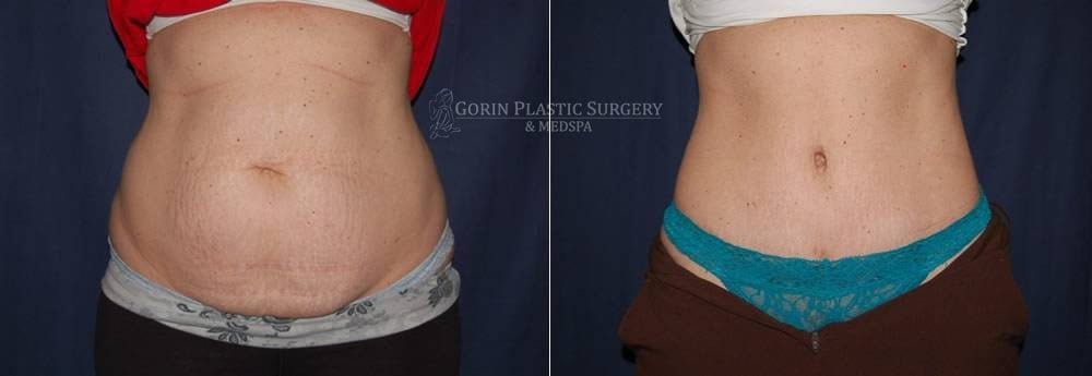 Tummy tuck before and after 56