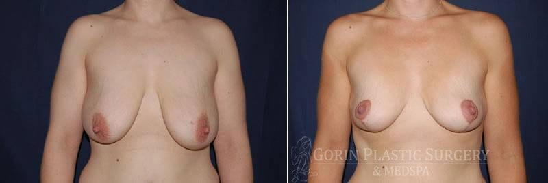 breast lift with augmentation before and after front view 16