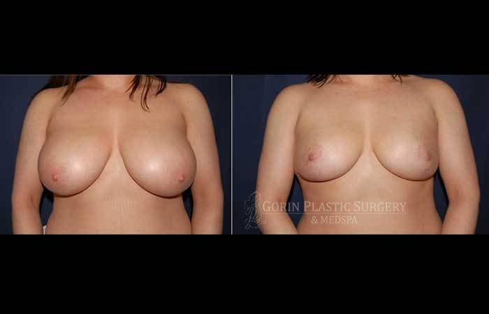 breast lift with augmentation before and after front view 61