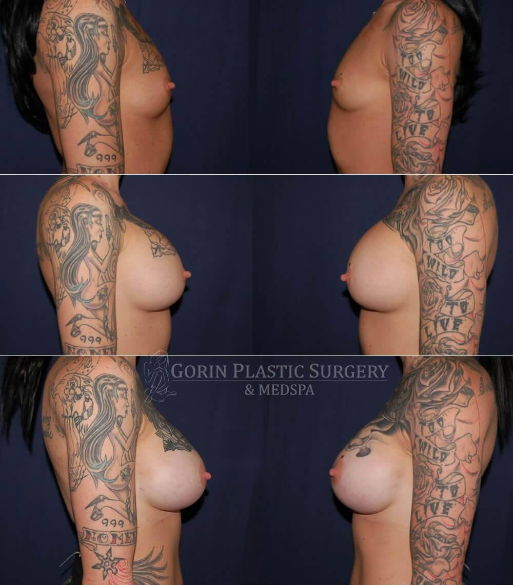 Breast augmentation before and after side view 70