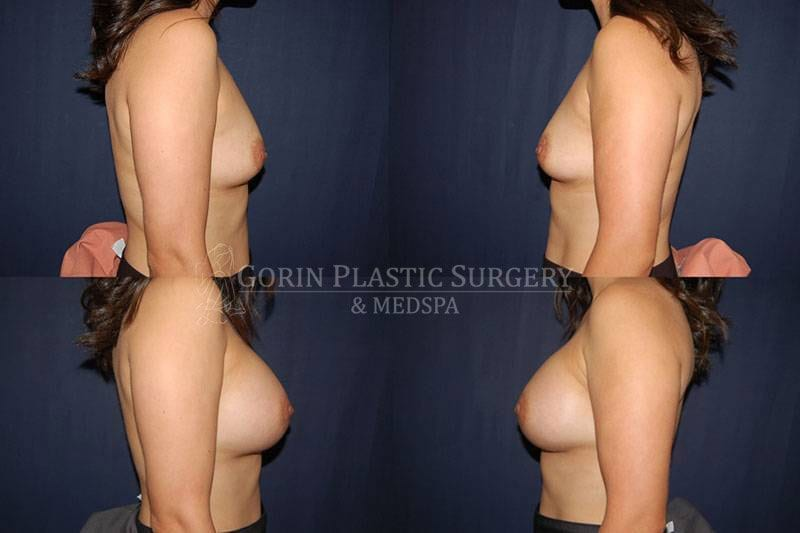 Breast augmentation before and after side view 68