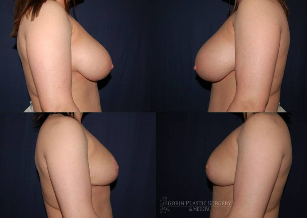 breast lift with augmentation before and after side view 11