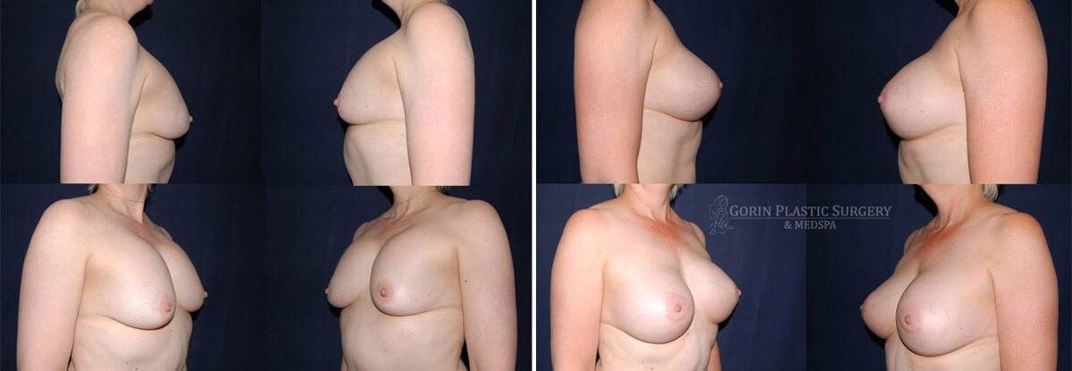 breast implants before and after oblique view 46