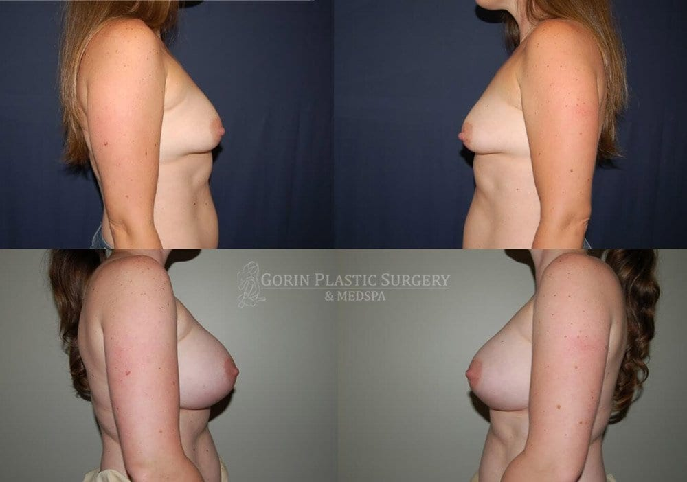 breast lift with augmentation before and after side view 23