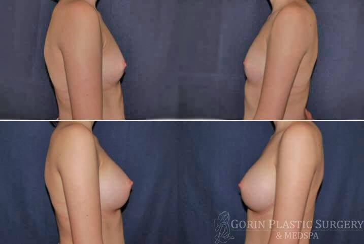 breast augmentation before and after side view 24