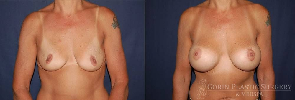breast augmentation before and after front view 23