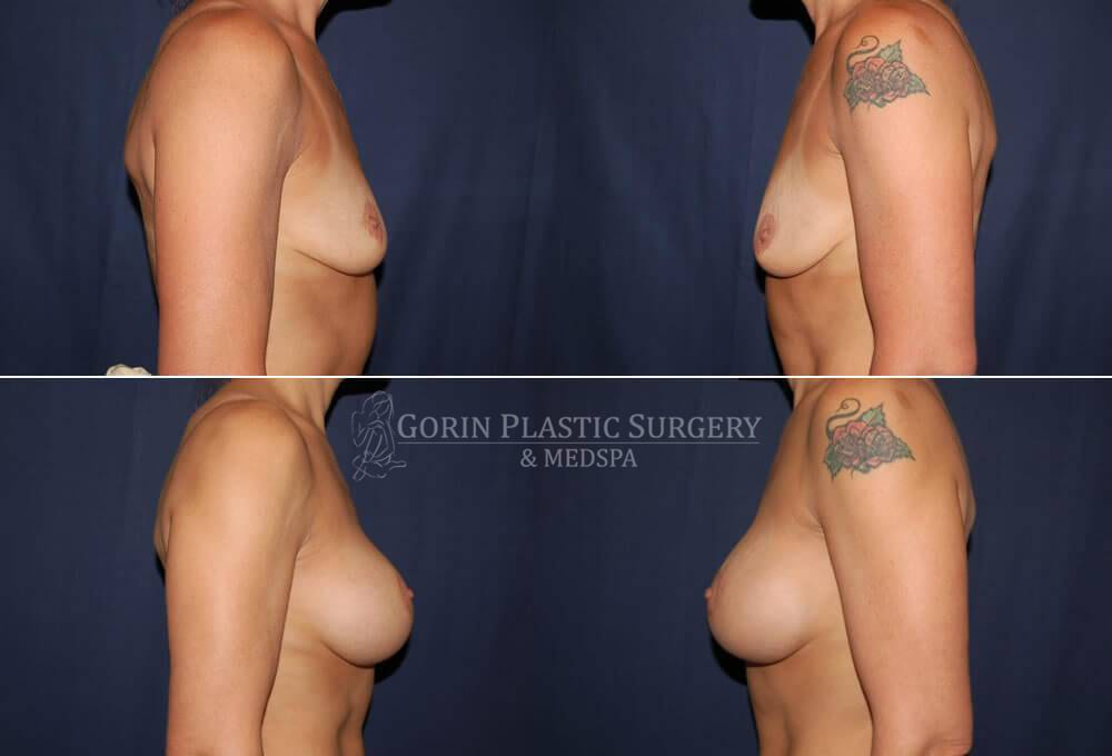 breast augmentation before and after side view 22