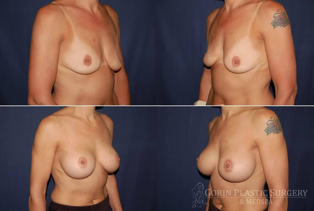 breast augmentation before and after oblique view 21