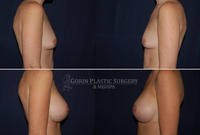 breast augmentation before and after side view 21