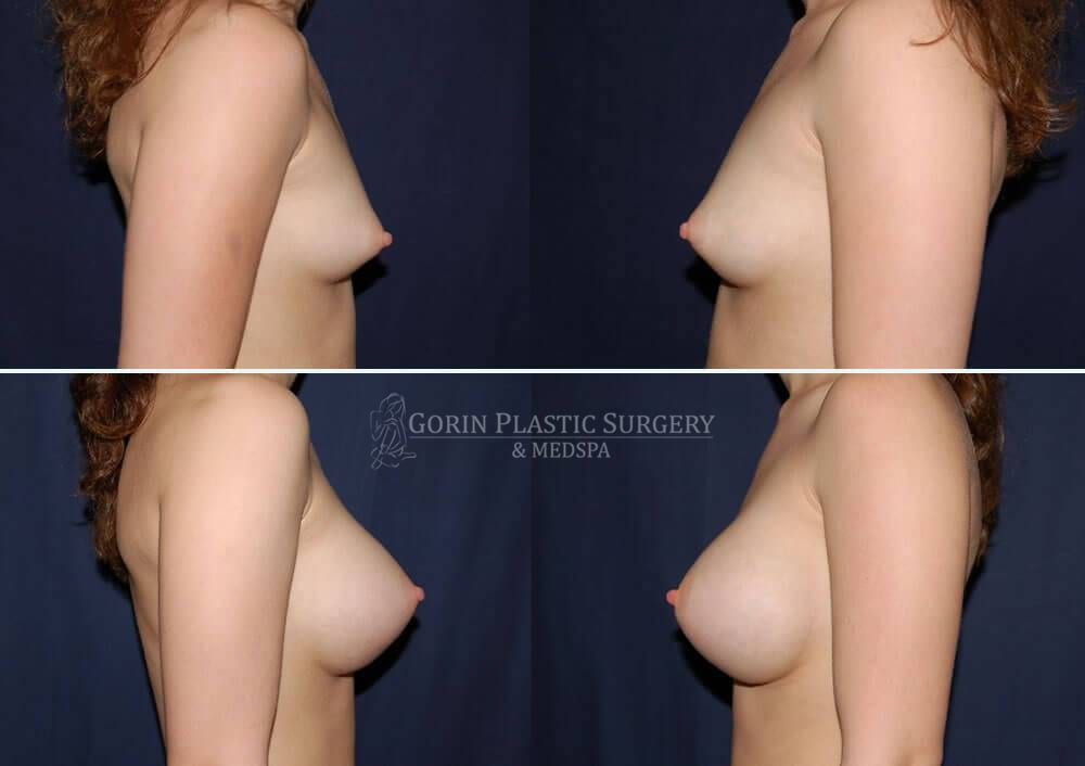breast augmentation before and after side view 20