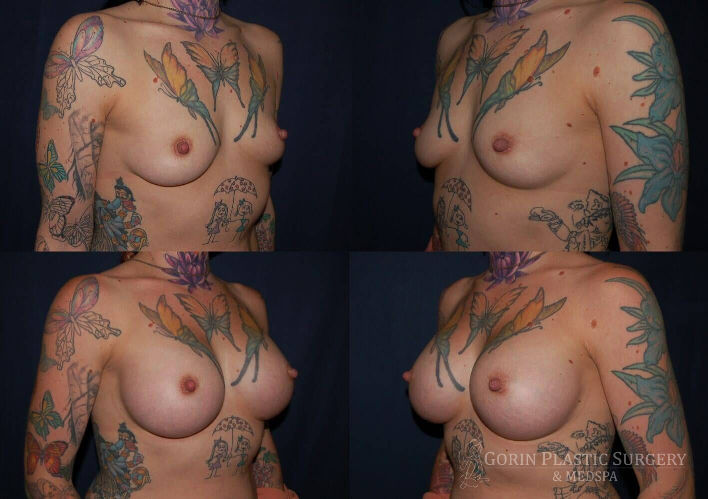 breast augmentation before and after oblique view 19