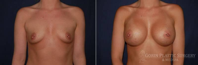 breast augmentation before and after front view 18