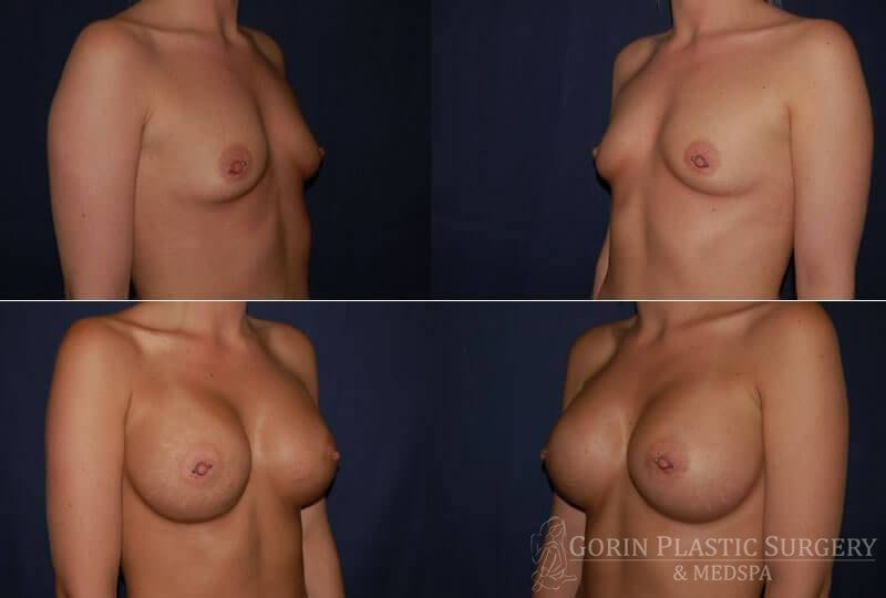 breast augmentation before and after oblique view 17