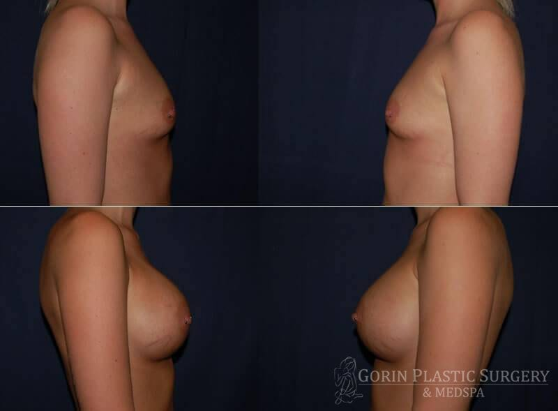 breast augmentation before and after side view 17