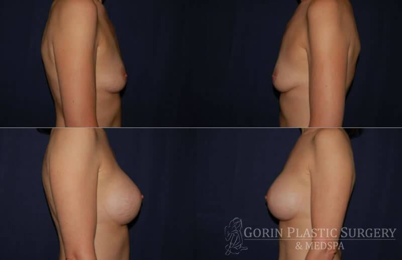 breast augmentation before and after side view 16