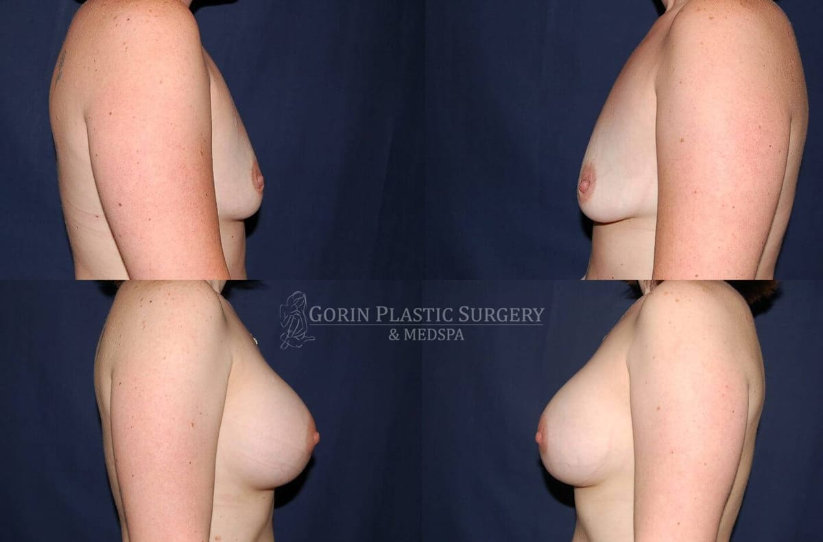 breast augmentation before and after side view 14