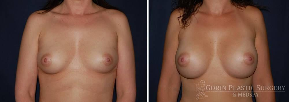 breast augmentation before and after front view 39