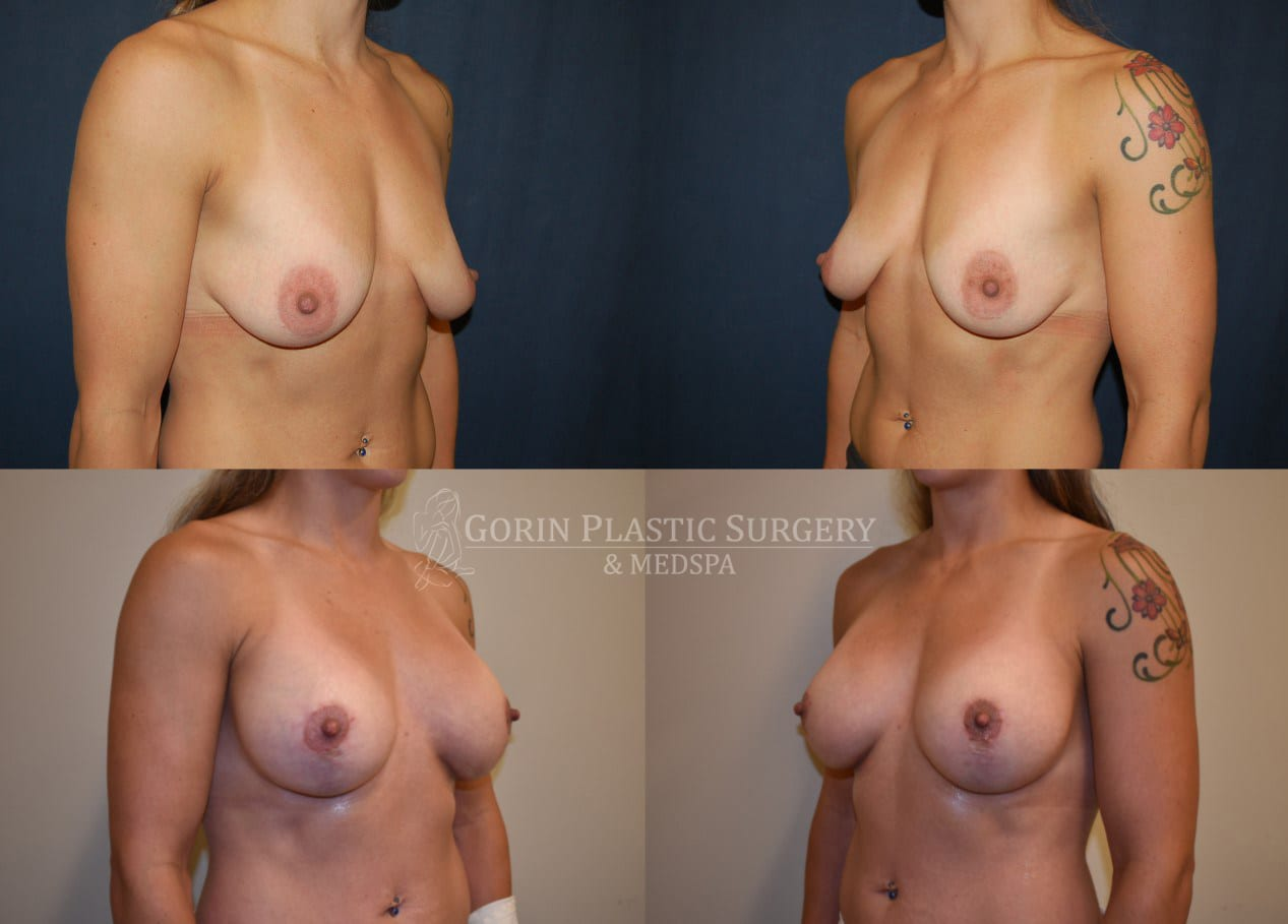 breast lift with augmentation before and after oblique view 9