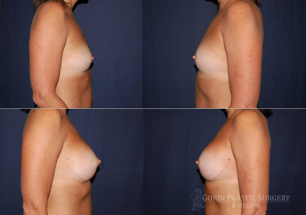 breast augmentation before and after side view 33