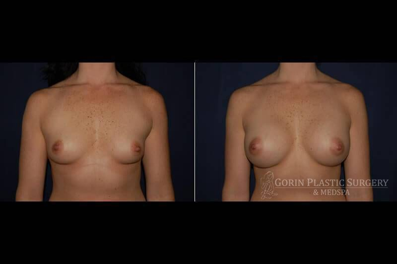 breast augmentation before and after frontal view 10