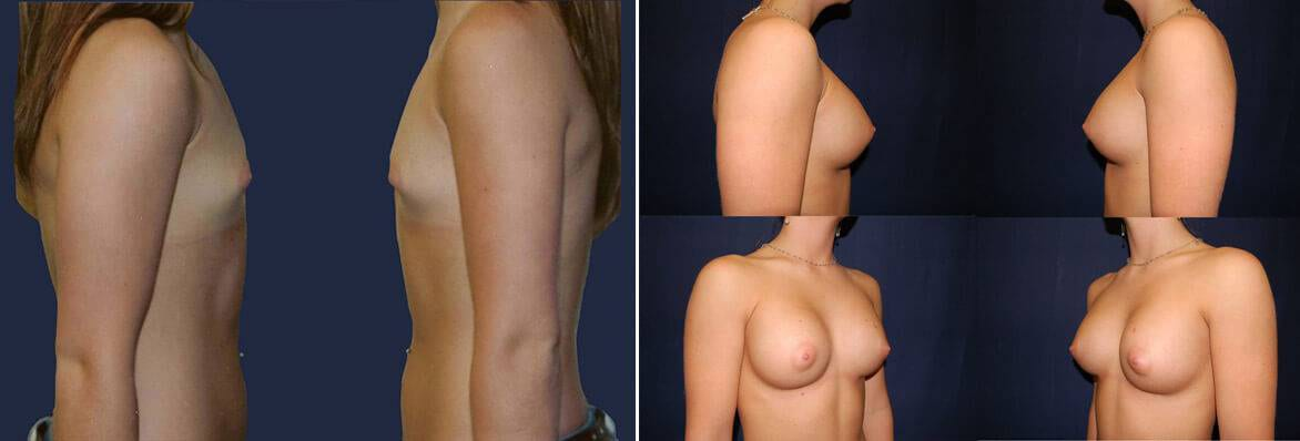 breast augmentation before and after 3