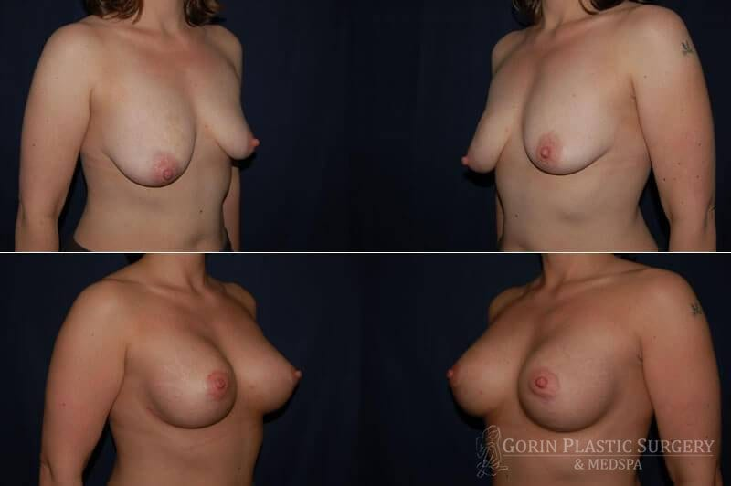 breast augmentation with breast lift oblique view