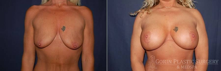 breast augmentation before and after front view 44