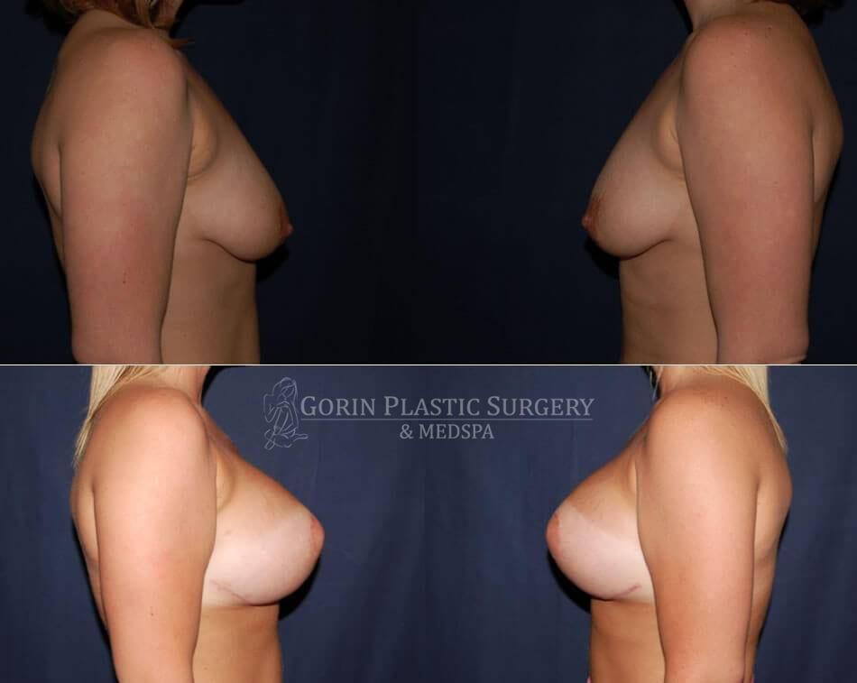 breast augmentation before and after side view 51