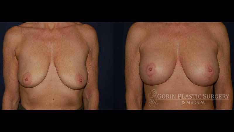 breast aug with lift before and after front view