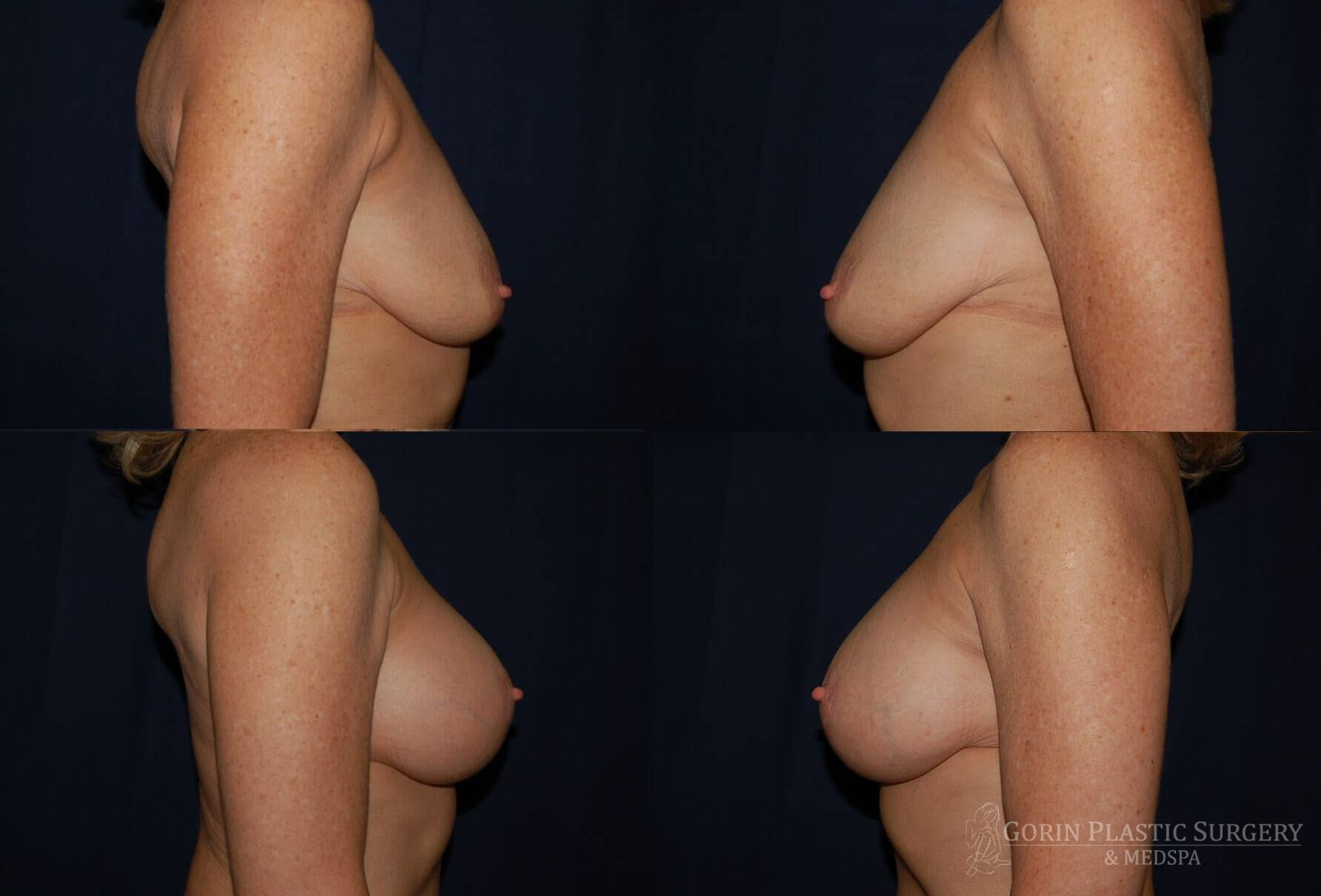 breast augmentation before and after side view 50