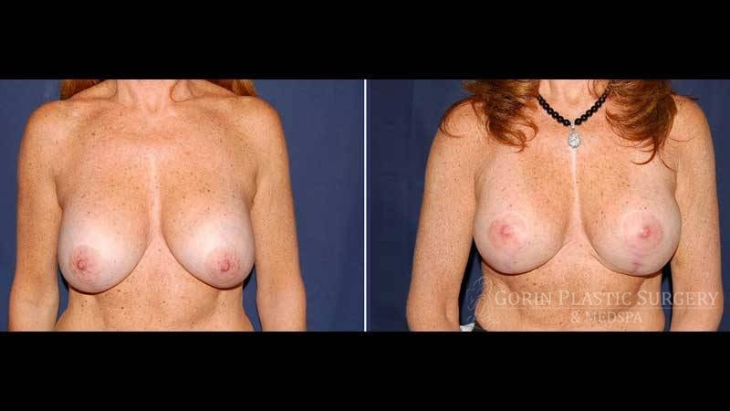 breast augmentation with lift before and after front view