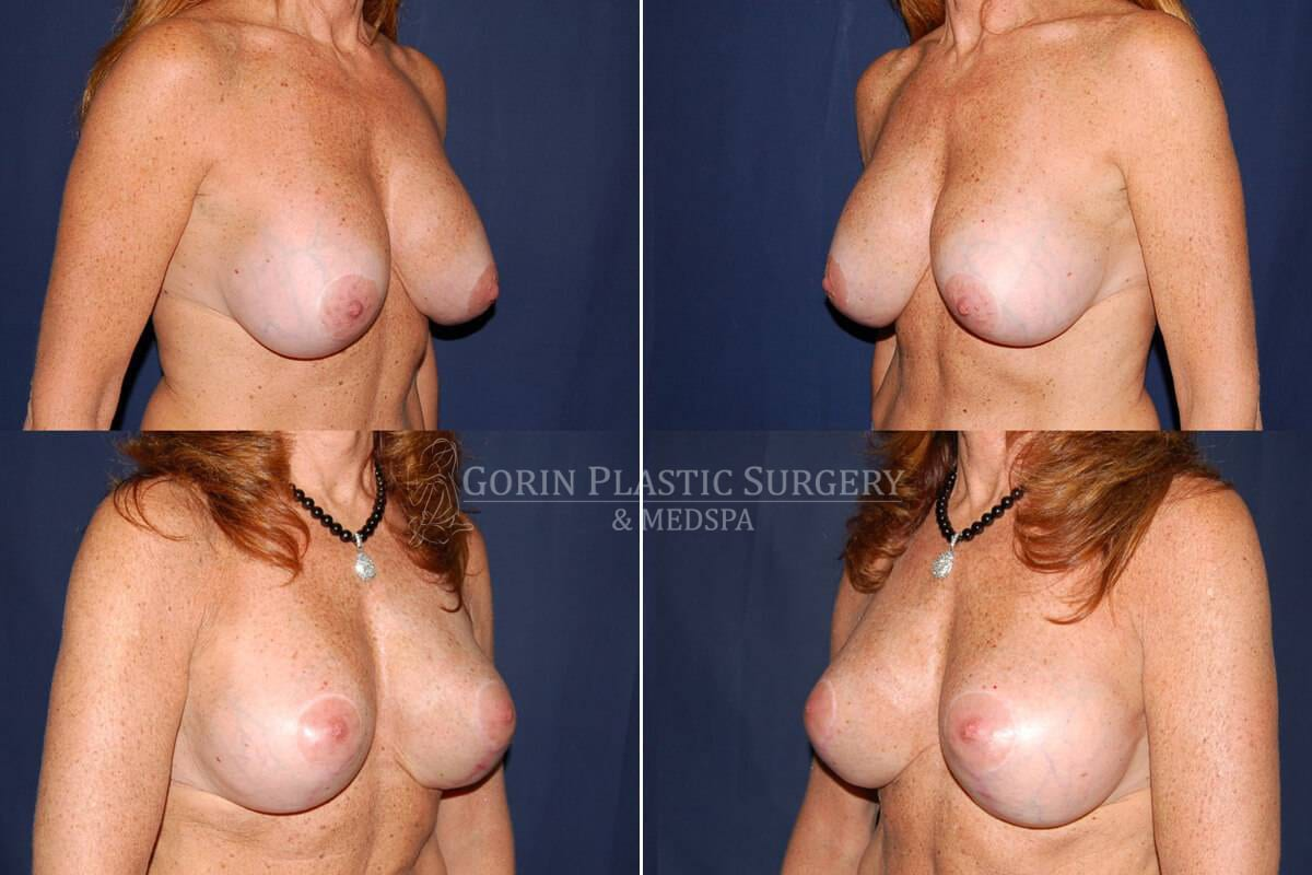 breast augmentation before and after oblique view 47