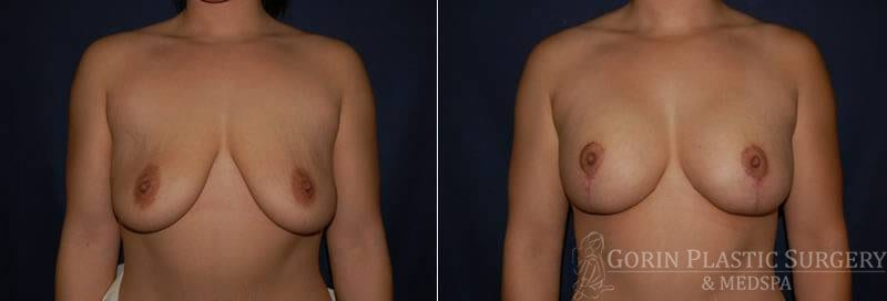 breast augmentation with lift5 before and after
