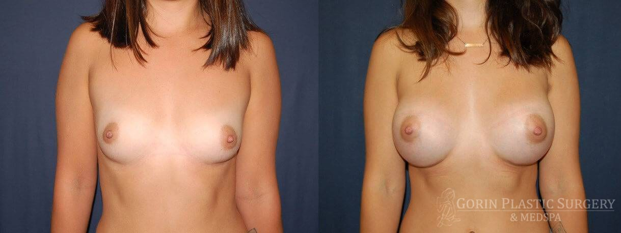 breast augmentation before and after frontal view 7