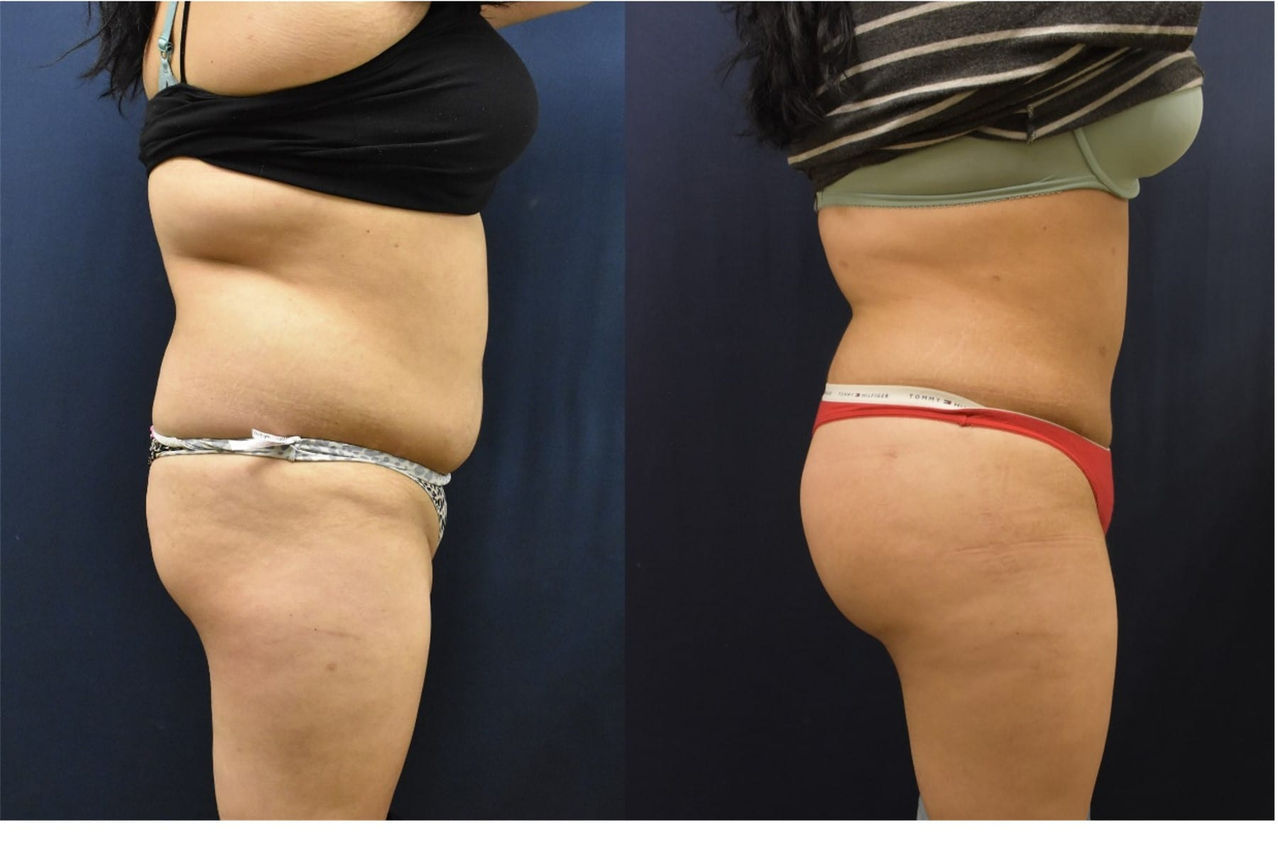 butt lift before and after may 18