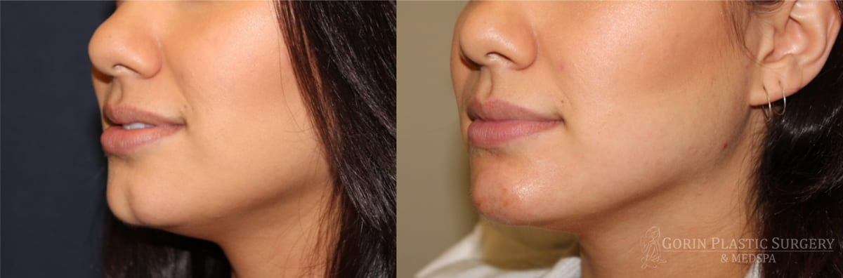 Juvederm Ultra Plus for chin cleft before after