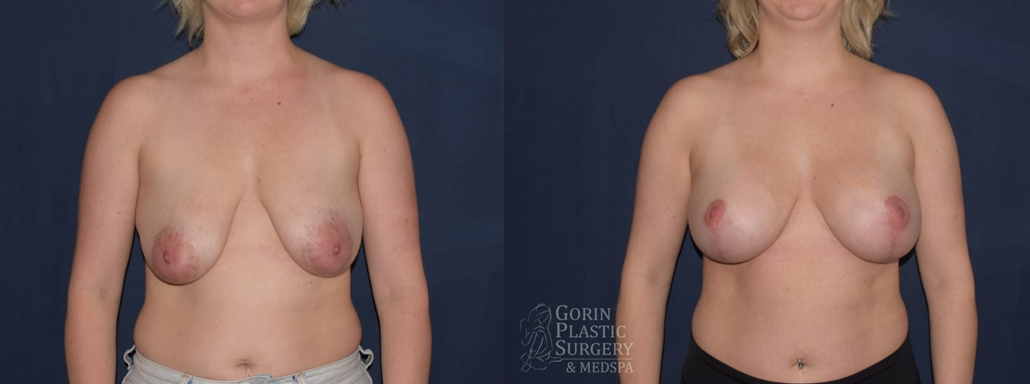 before after mastopexy breast augmentation at dr gorin plastic surgery frontal view jan 2020